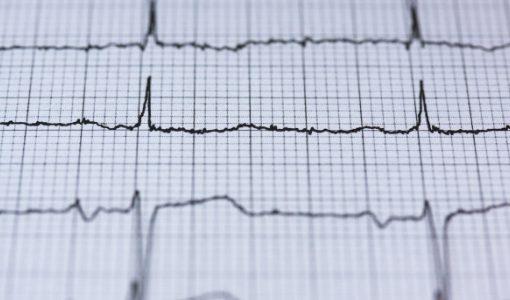 中国人の死因1位、心血管疾患を遠隔心電図システムで管理する「粒恩医療科技」