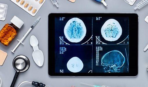 中国、AI画像による高精度「体内GPS」を実現、冠動脈検査支援の新興医療テックが30億円以上を調達