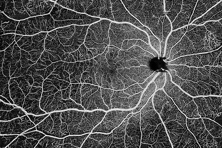 眼科用の高性能診断機器メーカー「SVision」、シリーズBで約16億円超を調達