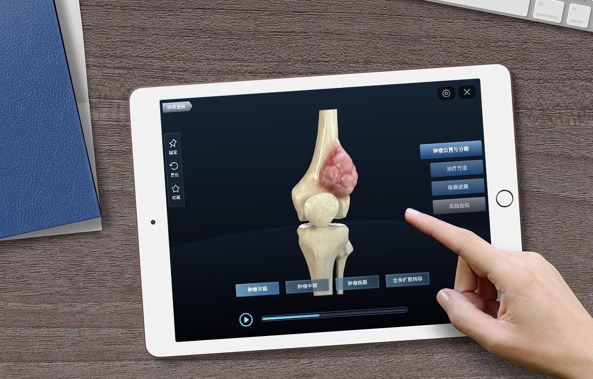医療情報をよりわかりやすく、CG動画が拓く医学の可能性
